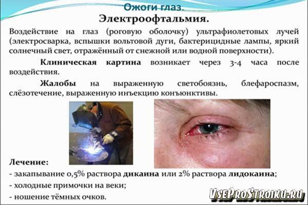 posle-svarki-bolyat-glaza0-9373037